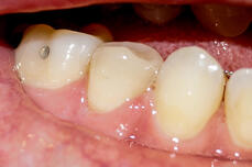 27 finished OVC from buccal