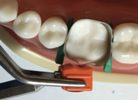 Tighten Band with Wedges in place